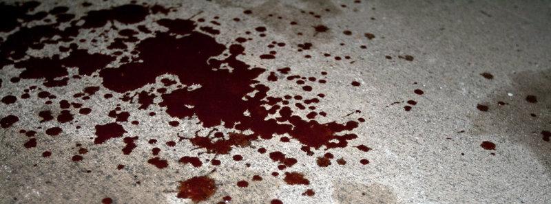 Rendkívüli: gyilkosság a Noszlopy-soron! Elhunyt az a 21 éves fiatalember, akit június 20-án este ért halálos ütés!
